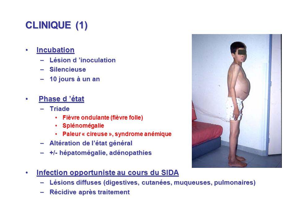 CLINIQUE (1) Incubation Phase d 'état