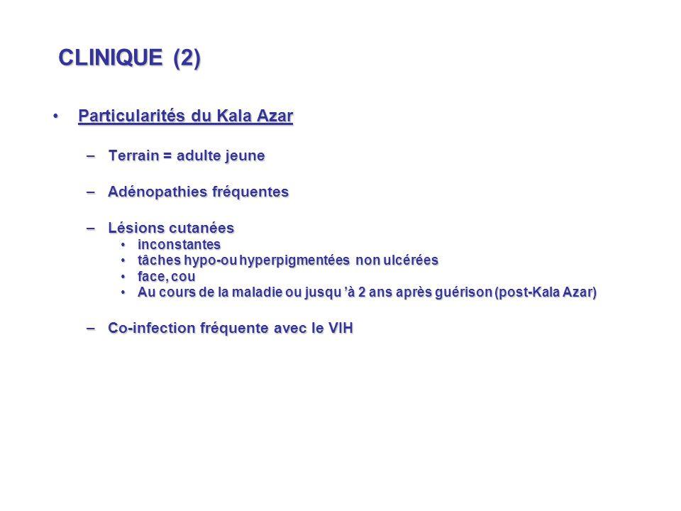CLINIQUE (2) Particularités du Kala Azar Terrain = adulte jeune