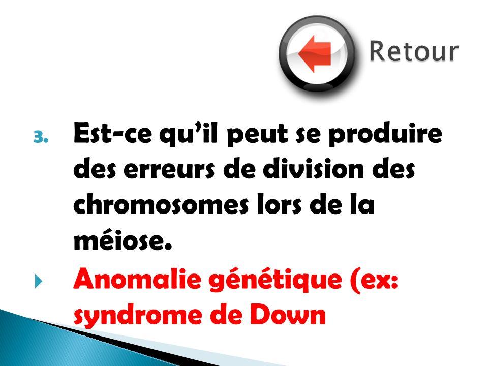 Anomalie génétique (ex: syndrome de Down