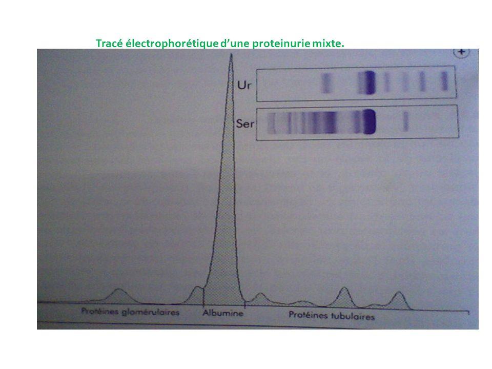 Tracé électrophorétique d'une proteinurie mixte.