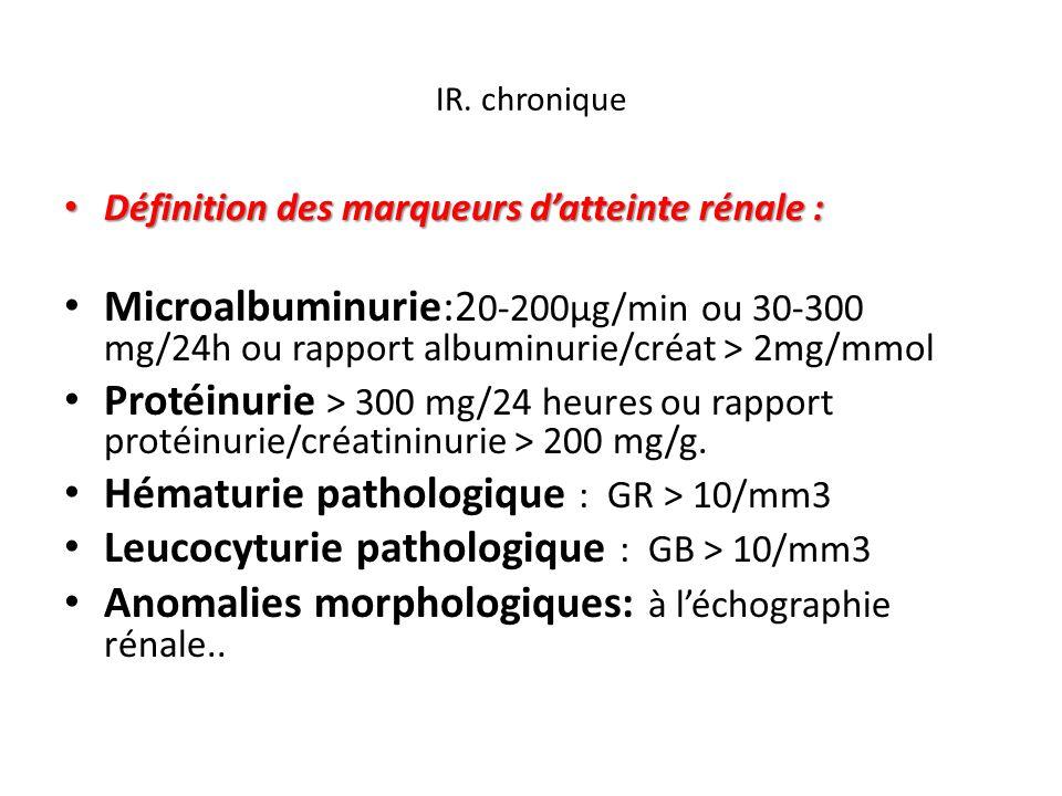Hématurie pathologique : GR > 10/mm3