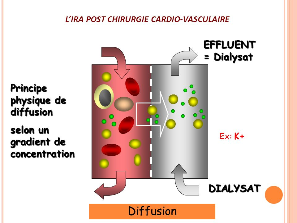 L'IRA POST CHIRURGIE CARDIO-VASCULAIRE