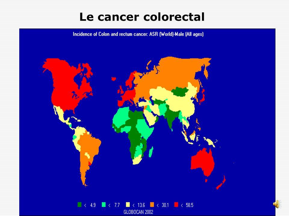 Le cancer colorectal