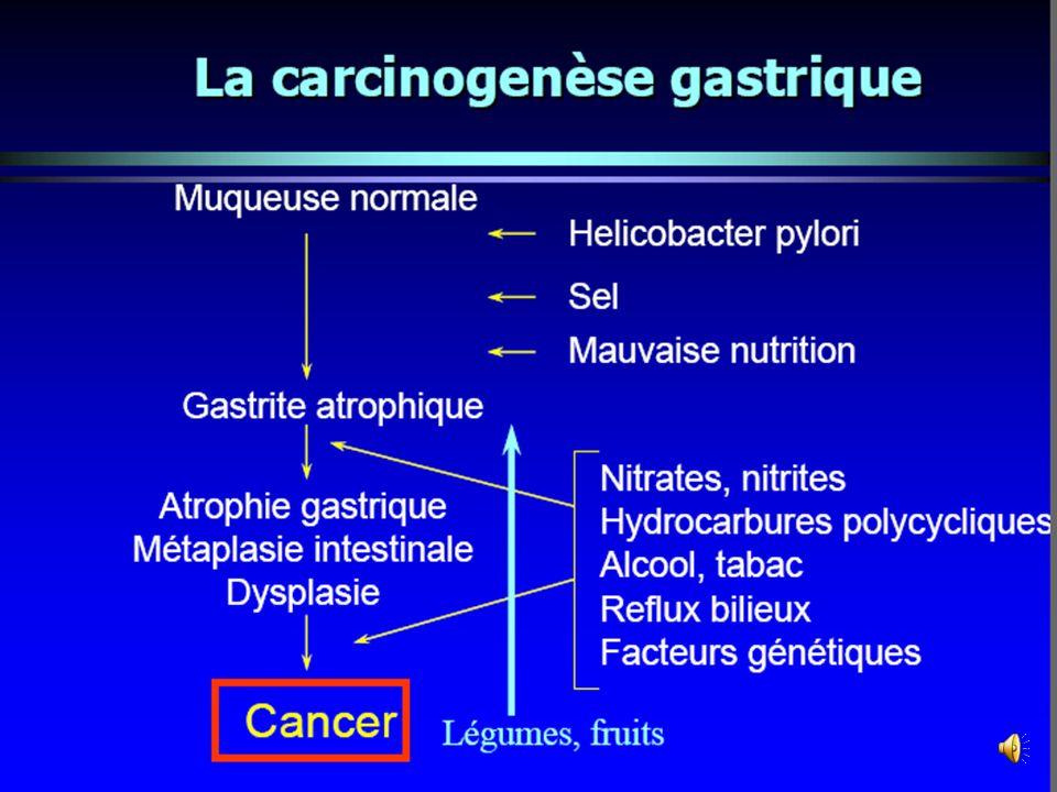 Les différentes étapes de la carcinogenèse gastrique