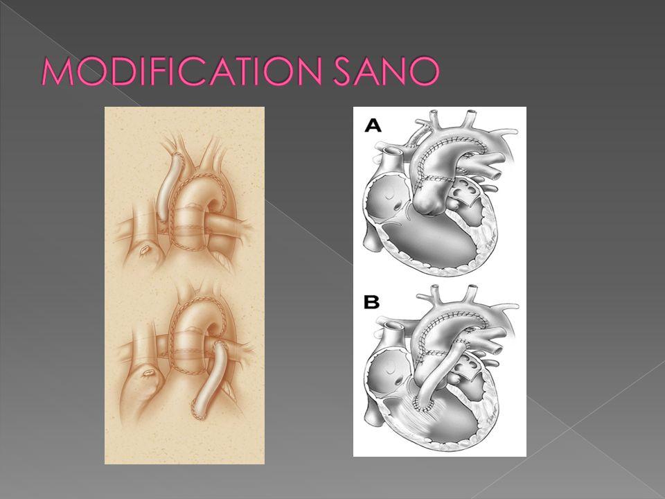 MODIFICATION SANO