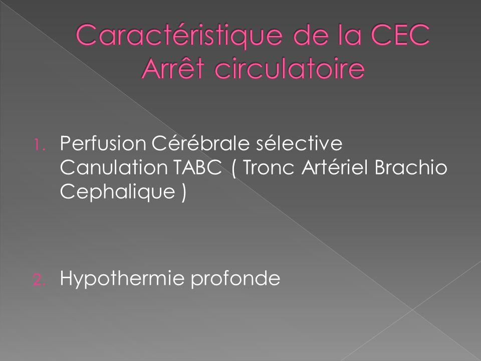 Caractéristique de la CEC Arrêt circulatoire
