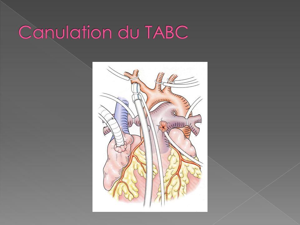 Canulation du TABC
