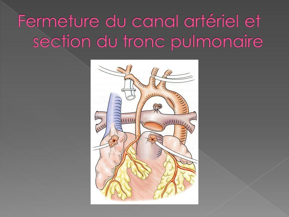 Fermeture du canal artériel et section du tronc pulmonaire