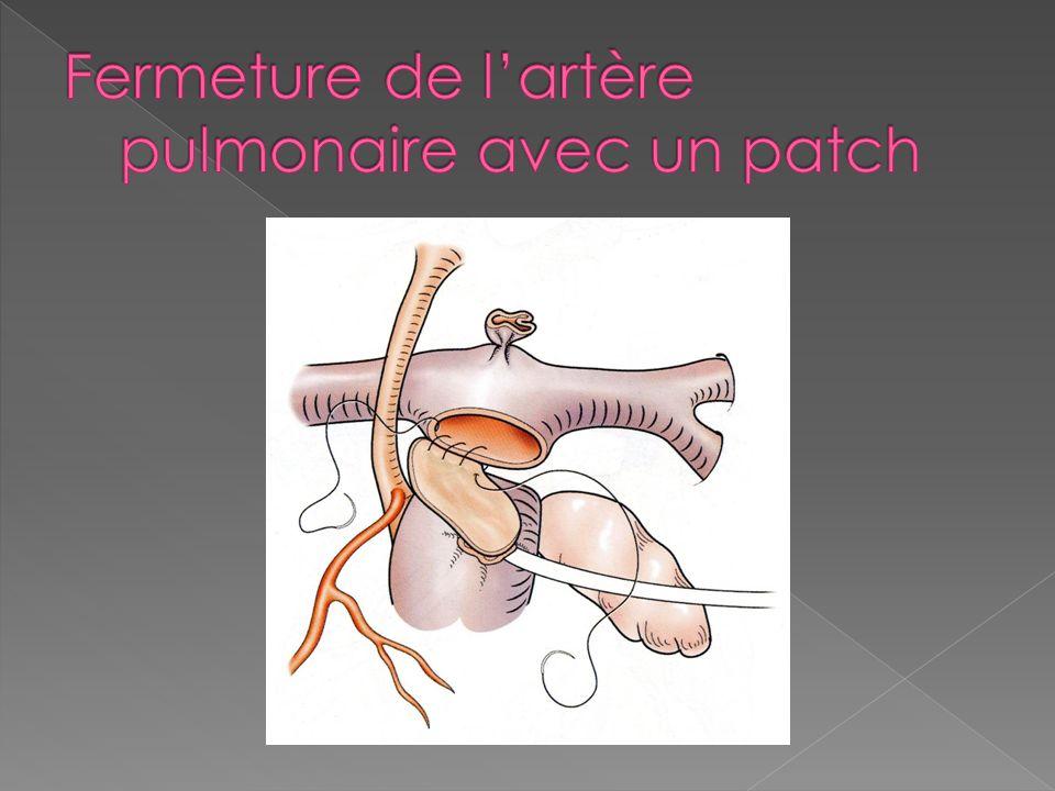 Fermeture de l'artère pulmonaire avec un patch