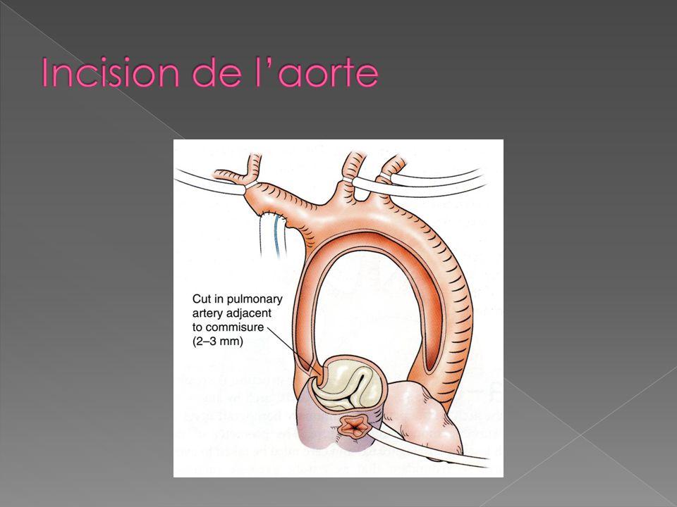 Incision de l'aorte