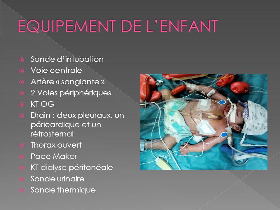 EQUIPEMENT DE L'ENFANT