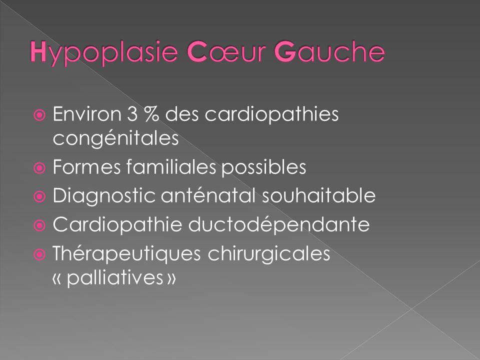 Hypoplasie Cœur Gauche