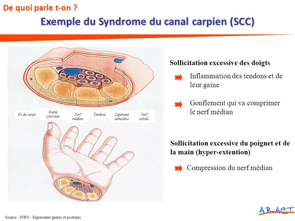 Exemple du Syndrome du canal carpien (SCC)
