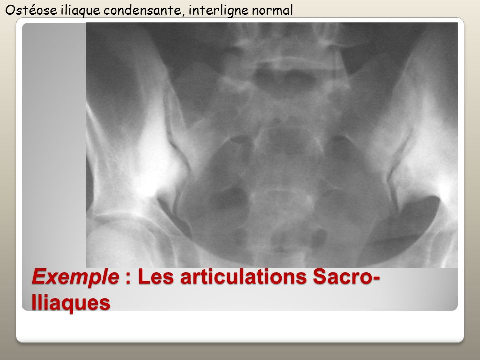 Exemple : Les articulations Sacro-Iliaques