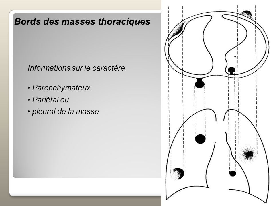 Bords des masses thoraciques