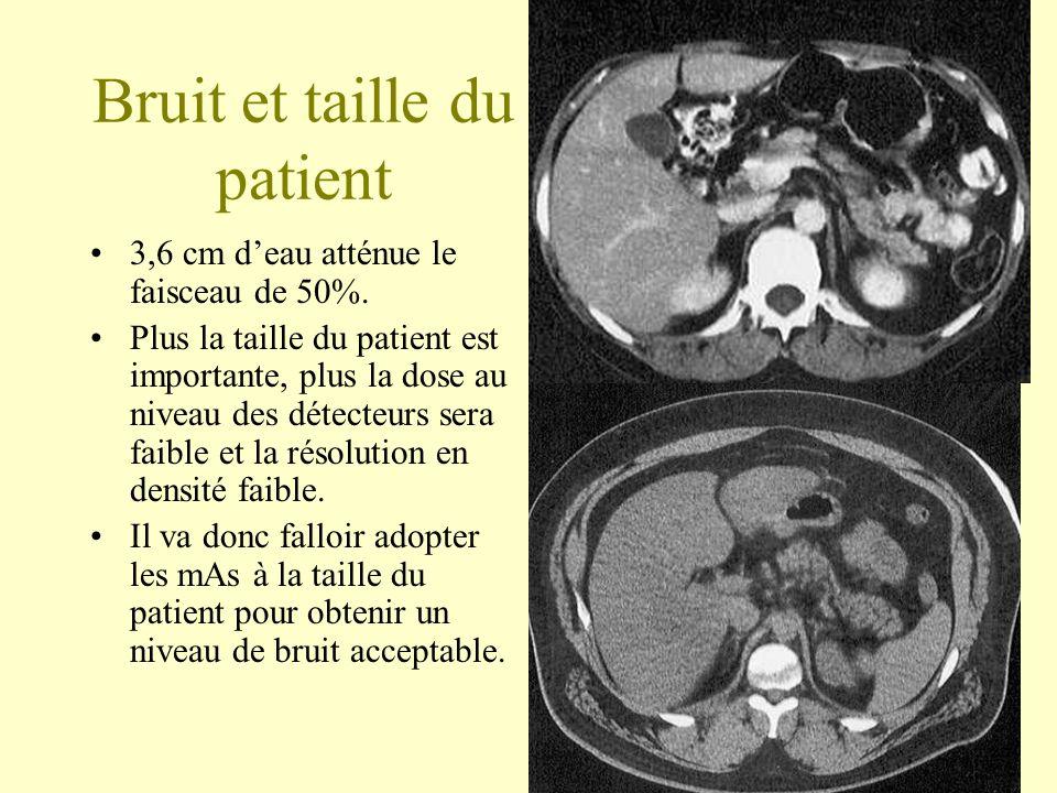 Bruit et taille du patient