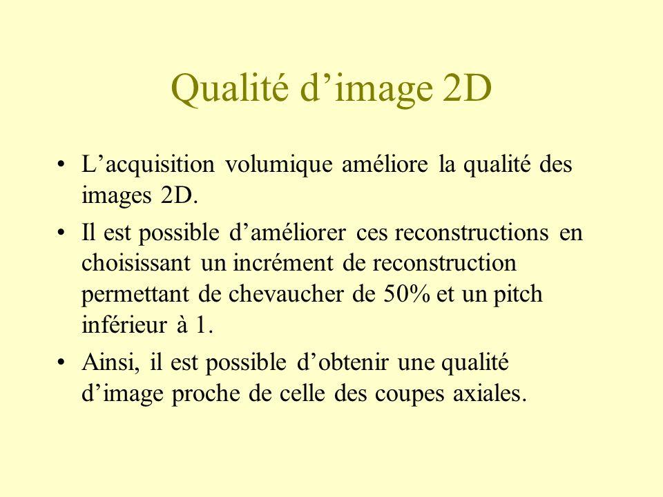 Qualité d'image 2D L'acquisition volumique améliore la qualité des images 2D.