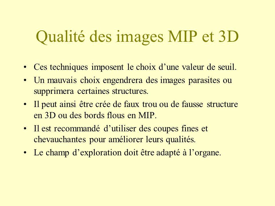 Qualité des images MIP et 3D