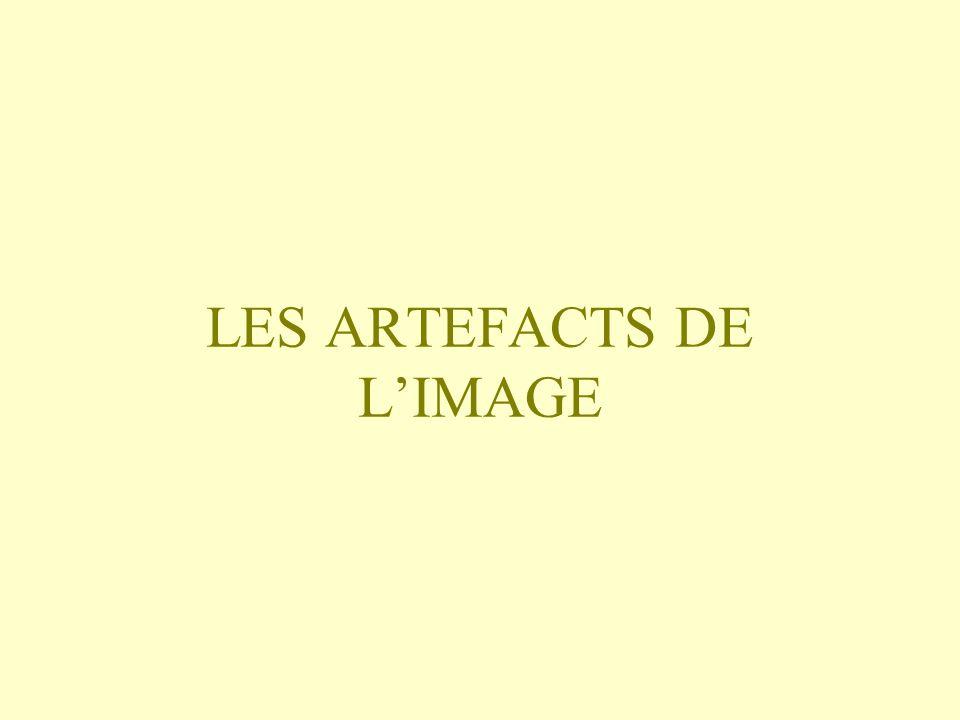 LES ARTEFACTS DE L'IMAGE