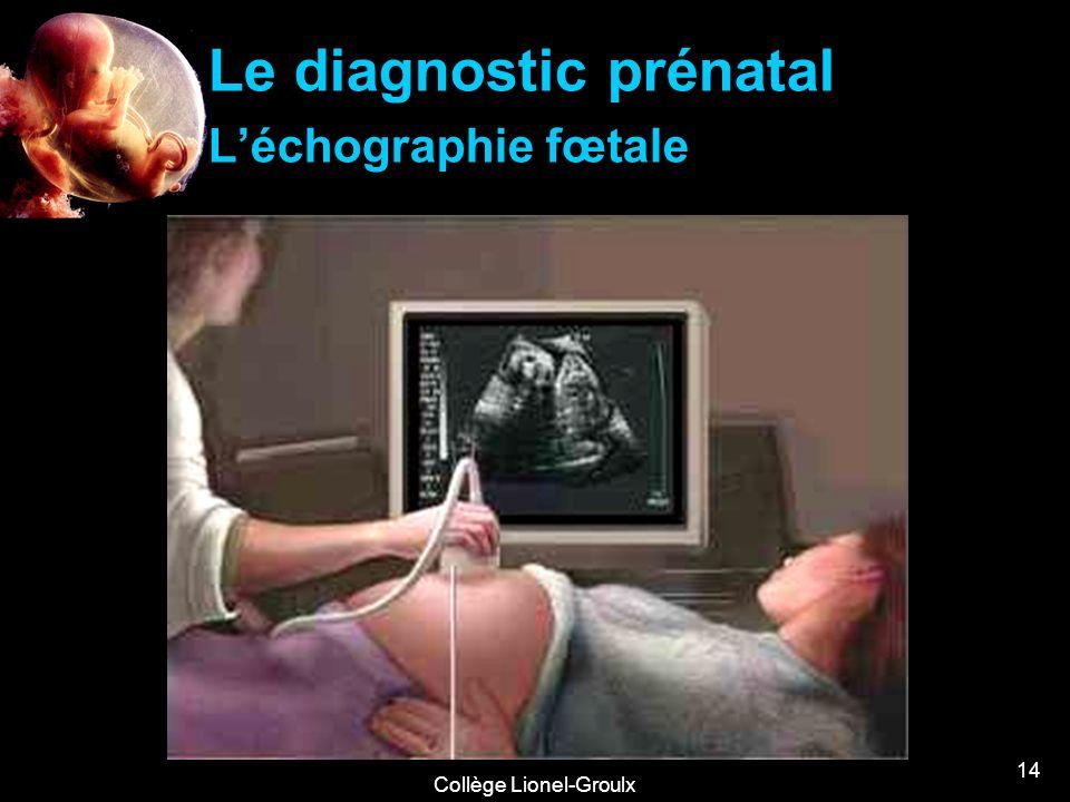 Le diagnostic prénatal L'échographie fœtale