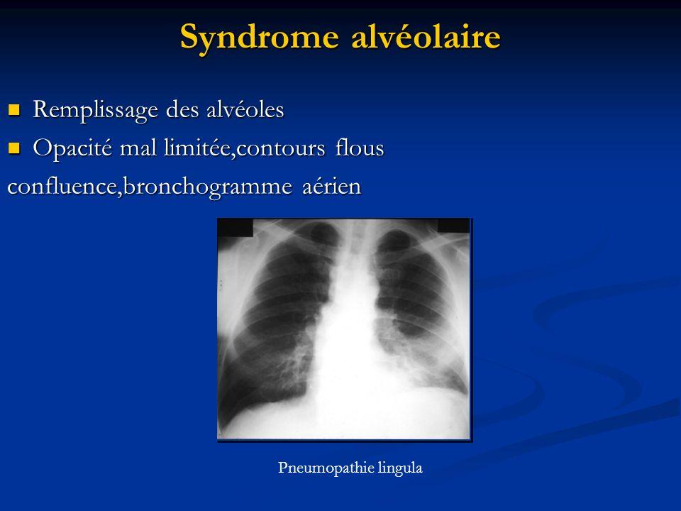 Syndrome alvéolaire Remplissage des alvéoles