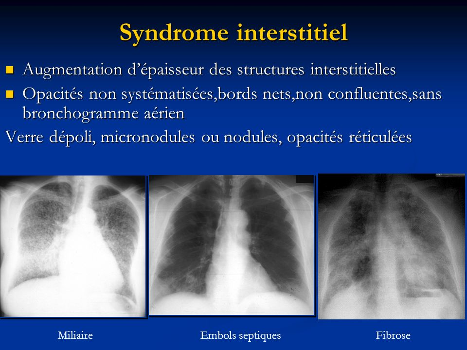 Syndrome interstitiel