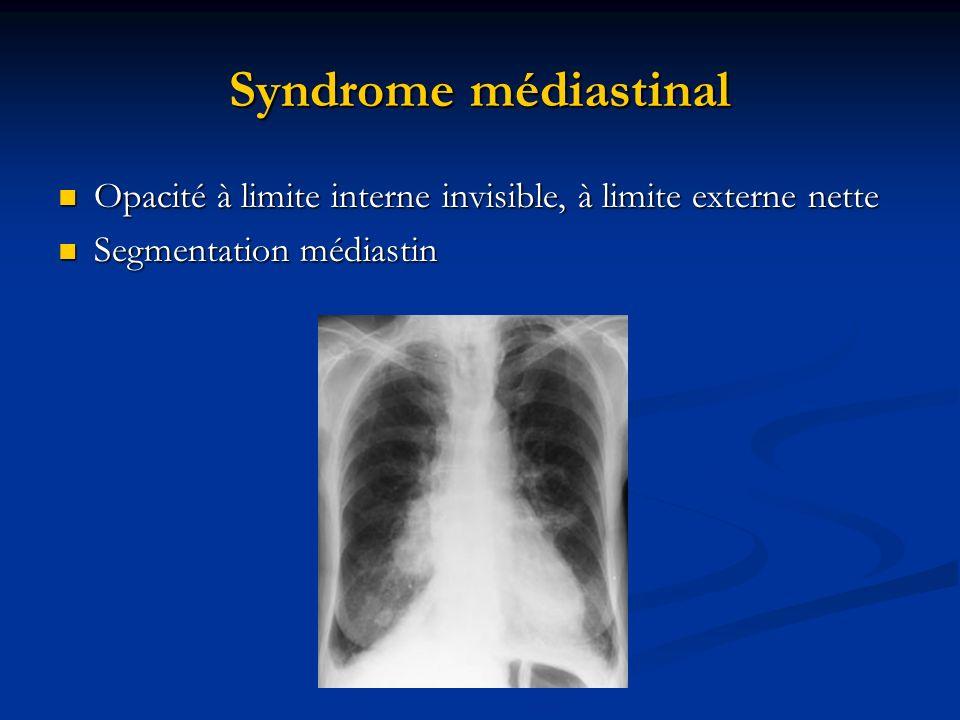 Syndrome médiastinal Opacité à limite interne invisible, à limite externe nette.
