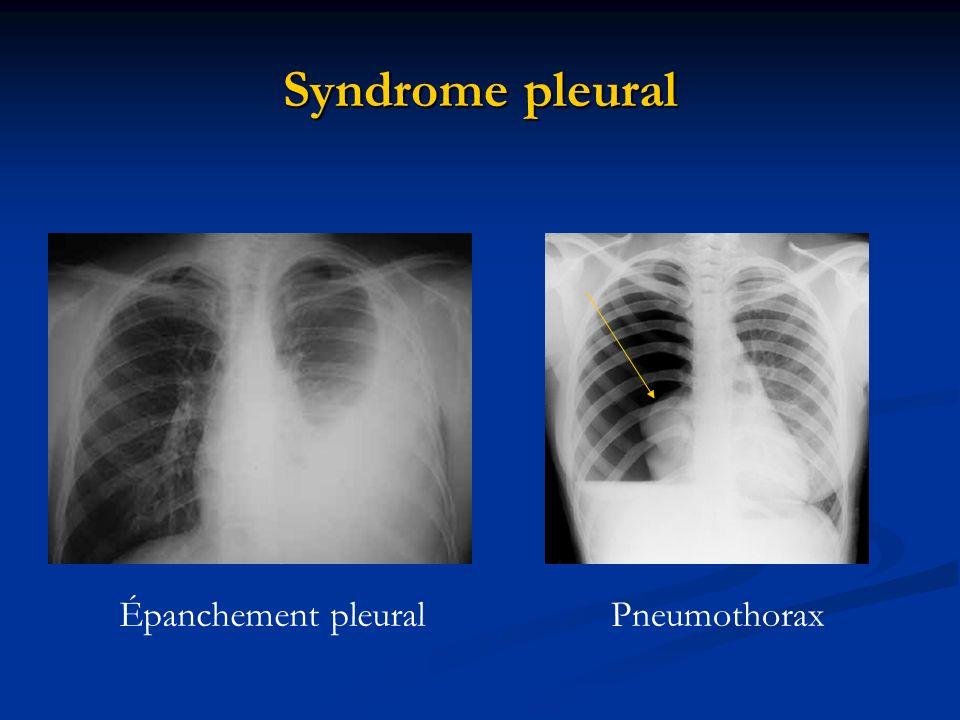 Syndrome pleural Épanchement pleural Pneumothorax