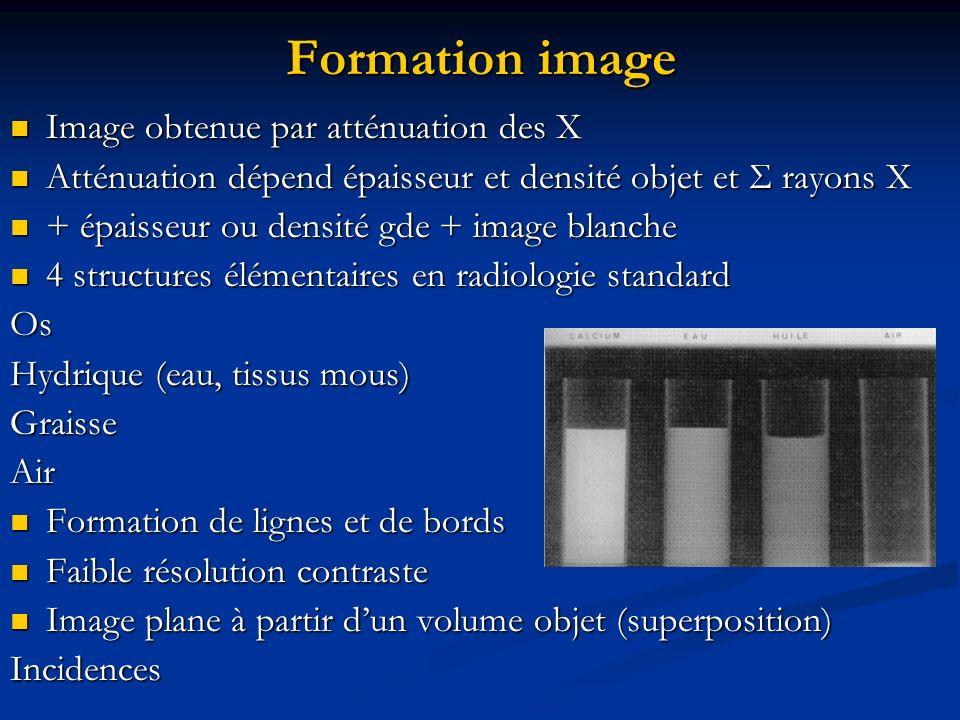 Formation image Image obtenue par atténuation des X