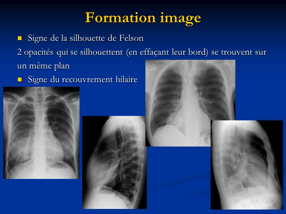 Formation image Signe de la silhouette de Felson