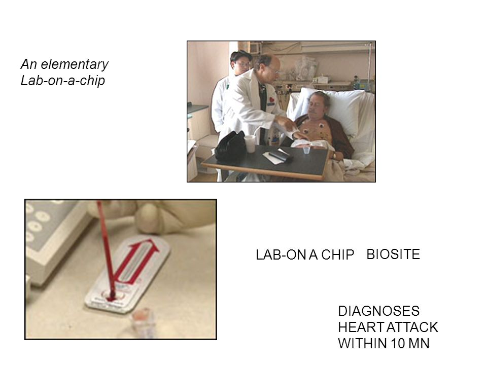 An elementary Lab-on-a-chip LAB-ON A CHIP BIOSITE DIAGNOSES HEART ATTACK WITHIN 10 MN