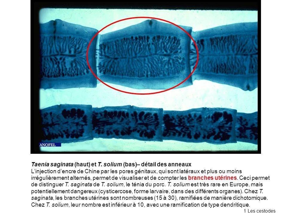 Taenia saginata (haut) et T. solium (bas)– détail des anneaux