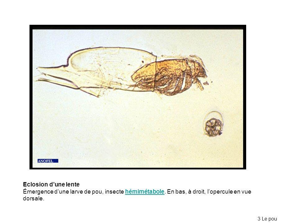 Eclosion d'une lente Émergence d'une larve de pou, insecte hémimétabole. En bas, à droit, l'opercule en vue dorsale.