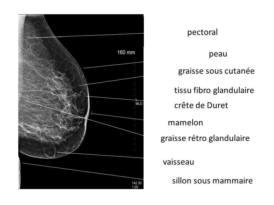 peau graisse sous cutanée. tissu fibro glandulaire. sillon sous mammaire. mamelon. graisse rétro glandulaire.