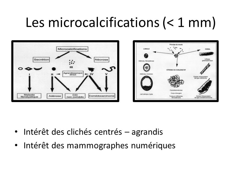 Les microcalcifications (< 1 mm)