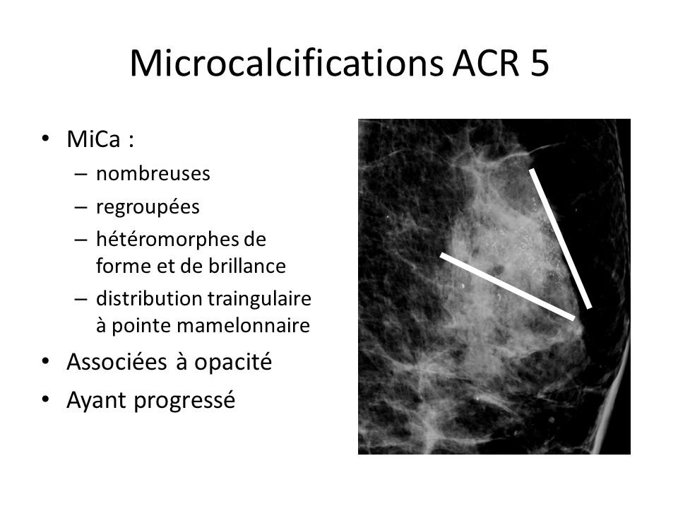 Microcalcifications ACR 5