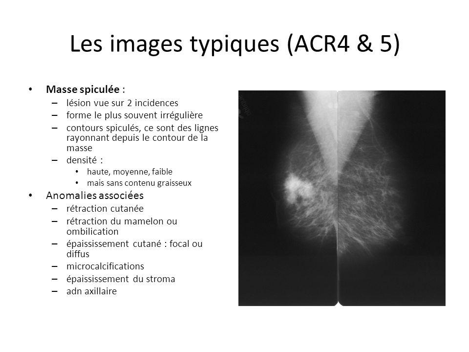 Les images typiques (ACR4 & 5)