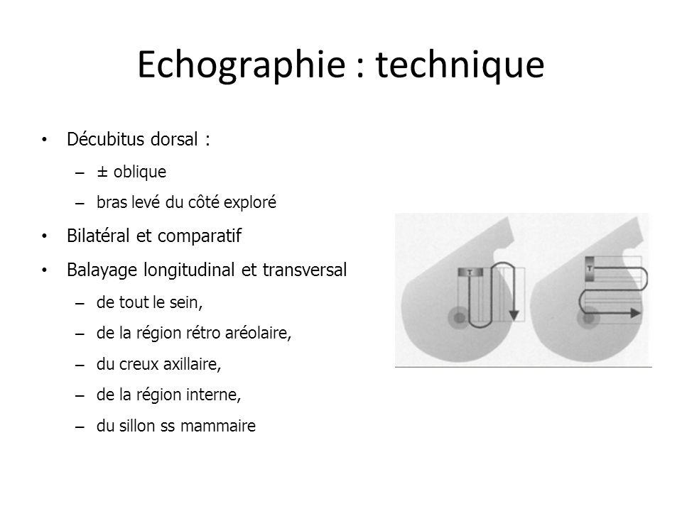 Echographie : technique
