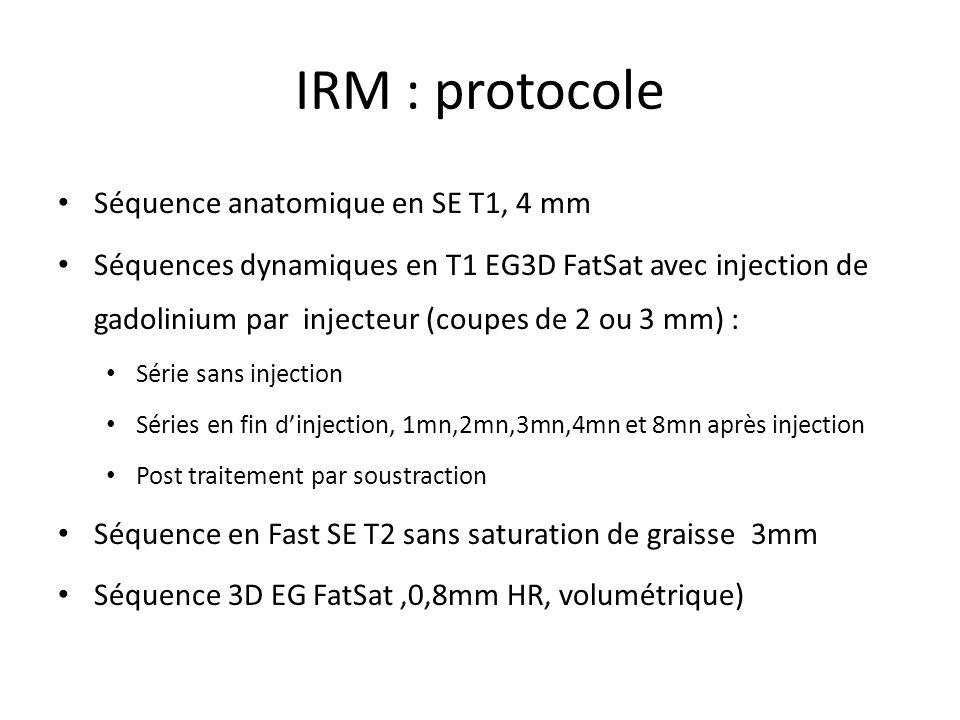 IRM : protocole Séquence anatomique en SE T1, 4 mm