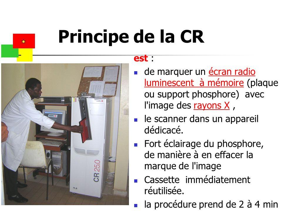 Principe de la CR est : de marquer un écran radio luminescent à mémoire (plaque ou support phosphore) avec l image des rayons X ,