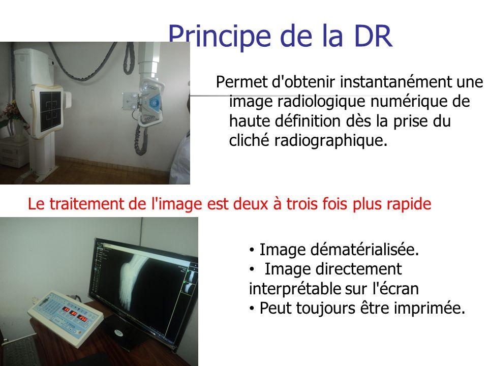 Principe de la DR Permet d obtenir instantanément une image radiologique numérique de haute définition dès la prise du cliché radiographique.