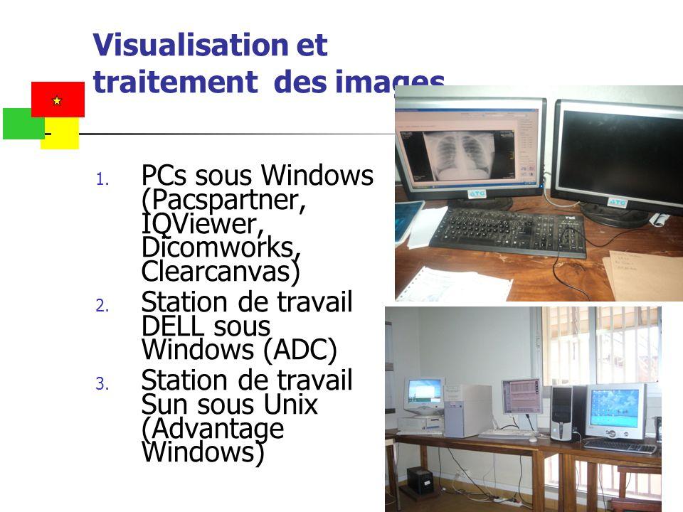 Visualisation et traitement des images