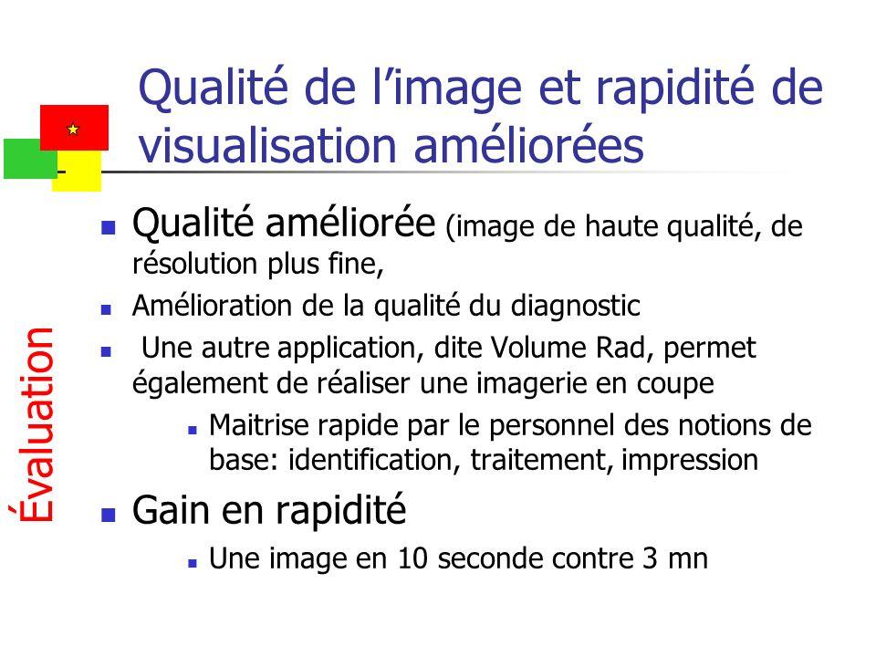 Qualité de l'image et rapidité de visualisation améliorées