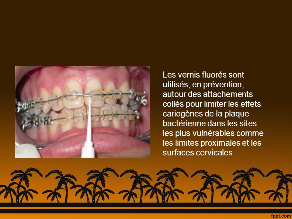 Les vernis fluorés sont utilisés, en prévention, autour des attachements collés pour limiter les effets cariogènes de la plaque bactérienne dans les sites les plus vulnérables comme les limites proximales et les surfaces cervicales