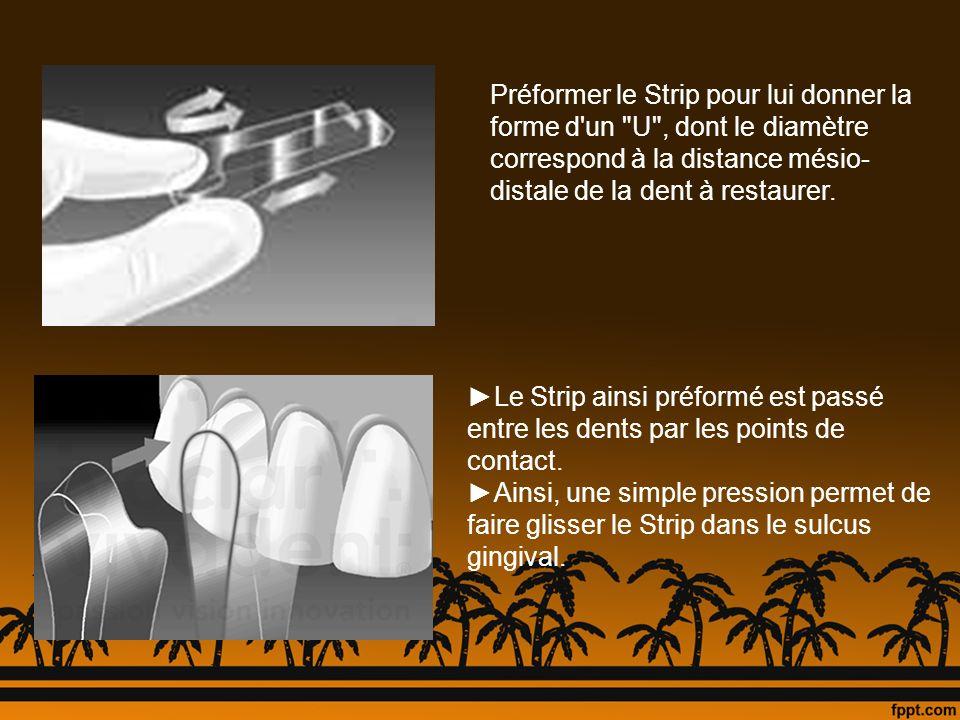 Préformer le Strip pour lui donner la forme d un U , dont le diamètre correspond à la distance mésio-distale de la dent à restaurer.