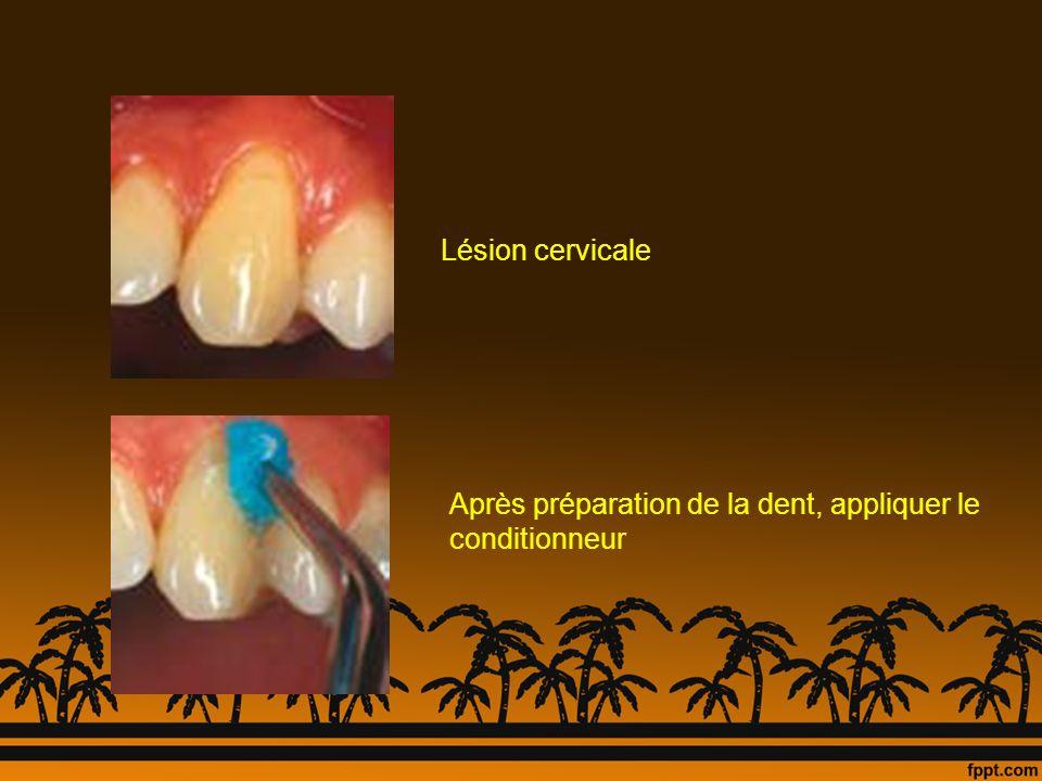 Lésion cervicale Après préparation de la dent, appliquer le conditionneur