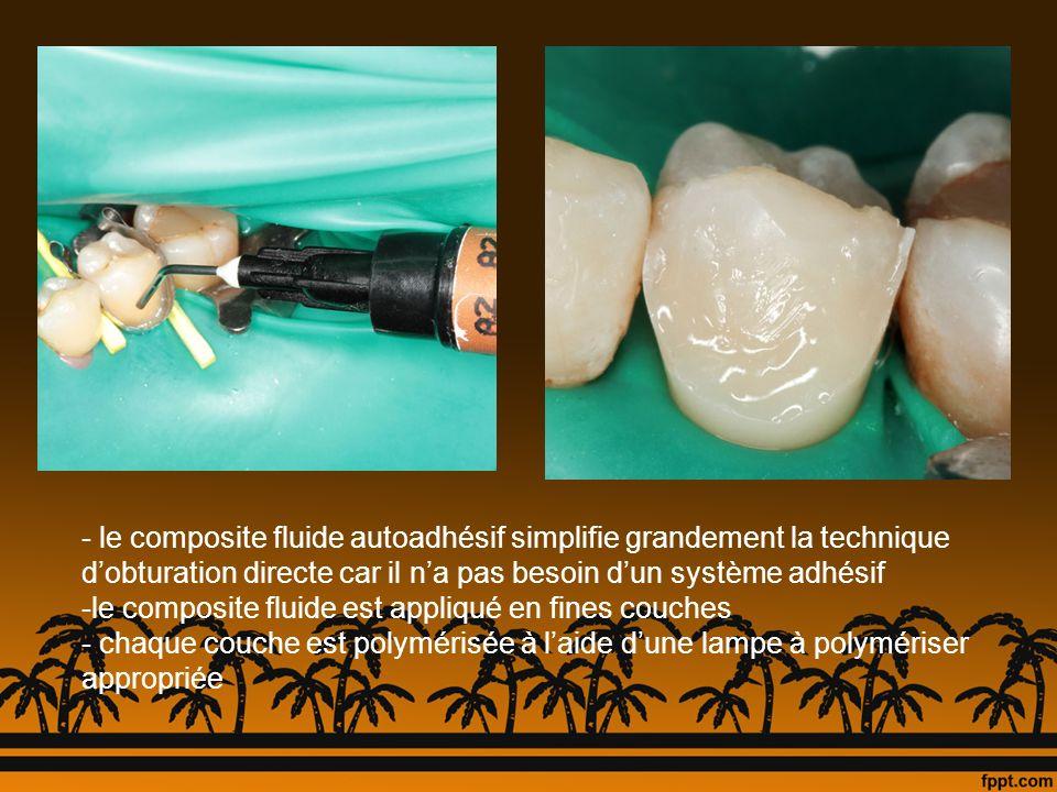 le composite fluide autoadhésif simplifie grandement la technique d'obturation directe car il n'a pas besoin d'un système adhésif