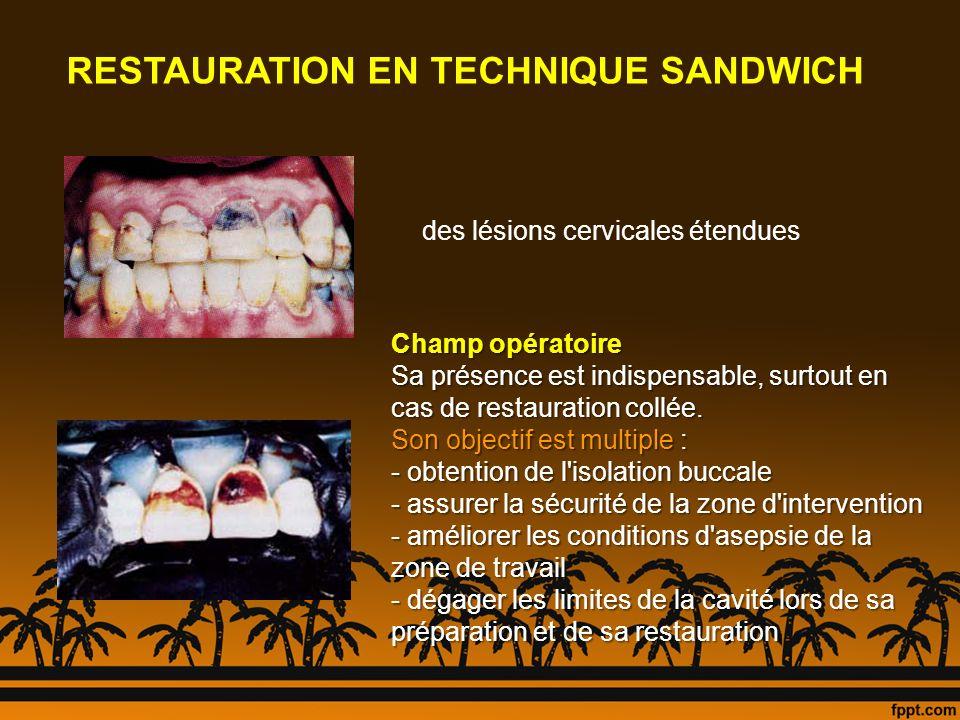 RESTAURATION EN TECHNIQUE SANDWICH