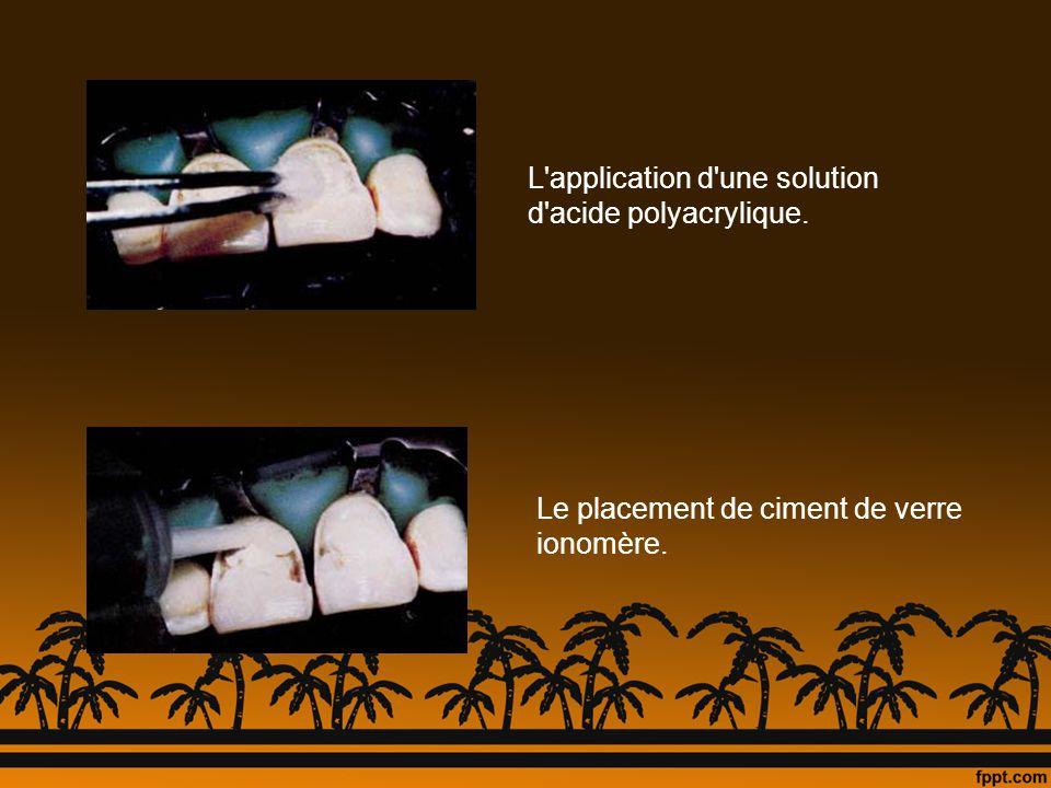 L application d une solution d acide polyacrylique.