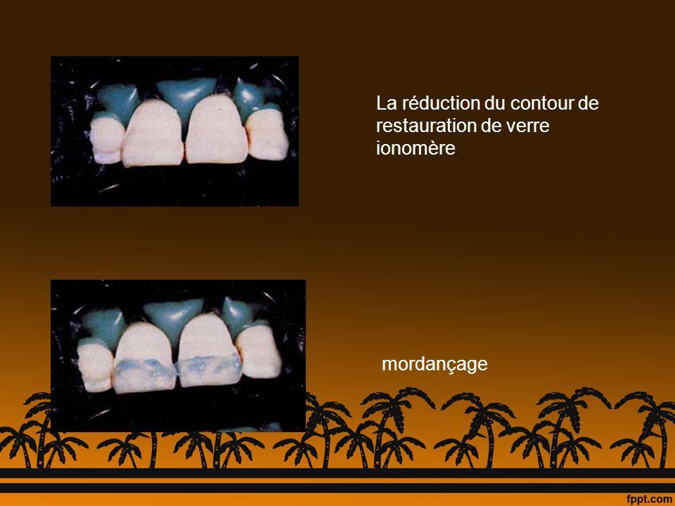 La réduction du contour de restauration de verre ionomère.